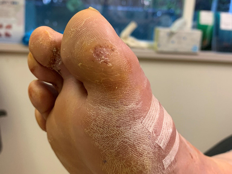 Richard's toe after treatment