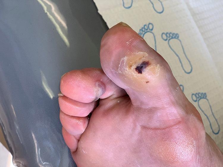 Richard's toe before treatment